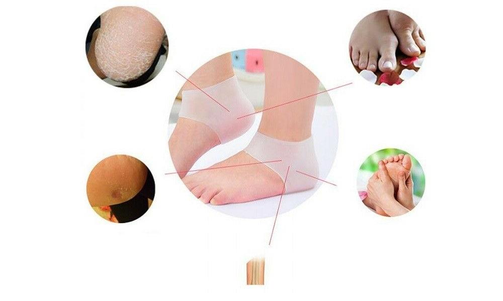 2PC Silicone Moisturizing Heel Socks Cracked Skin Care Protector